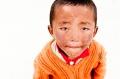 Beggar, Child, Dirty, Tibet, Tingri